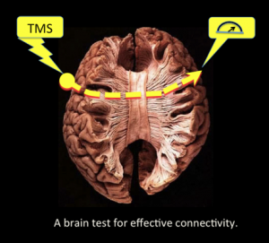 """Transcranial Brain Stimulation in Human Brain Portrayal"""