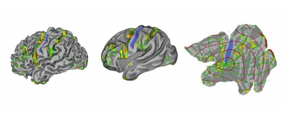 """Your Cortex is a Flat Sheet Image"""